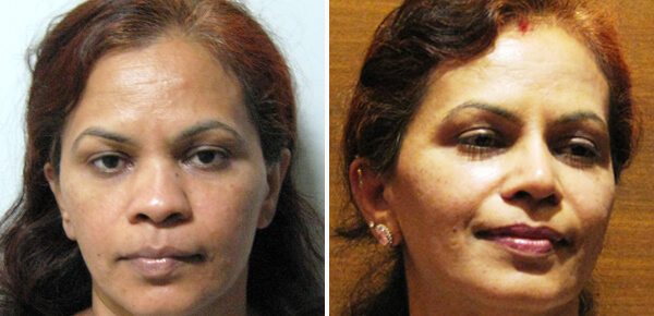 nose job cost before after
