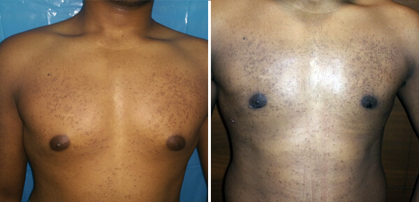 Male Breast Reduction Surgery Cost