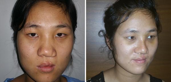 nose reshaping bangalore