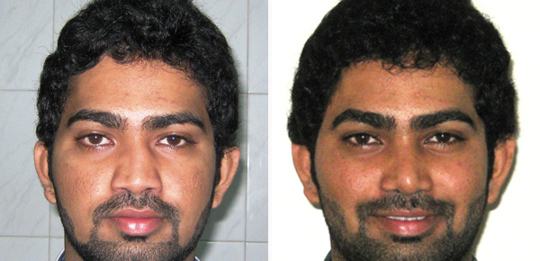 rhinoplasty surgery before after