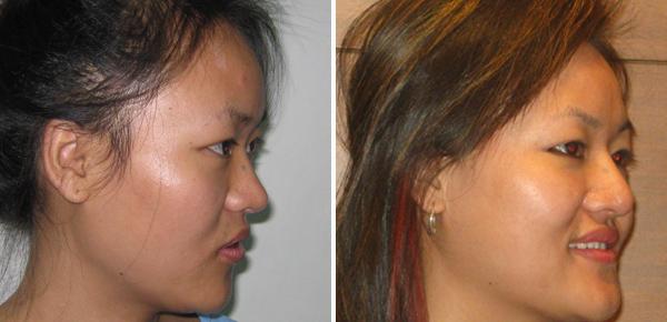 rhinoplasty nosesurgery before after