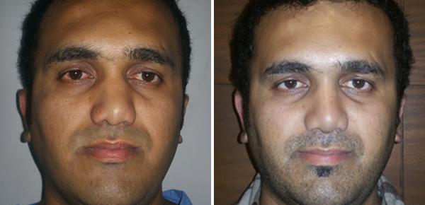 rhinoplasty nose cosmetic surgery